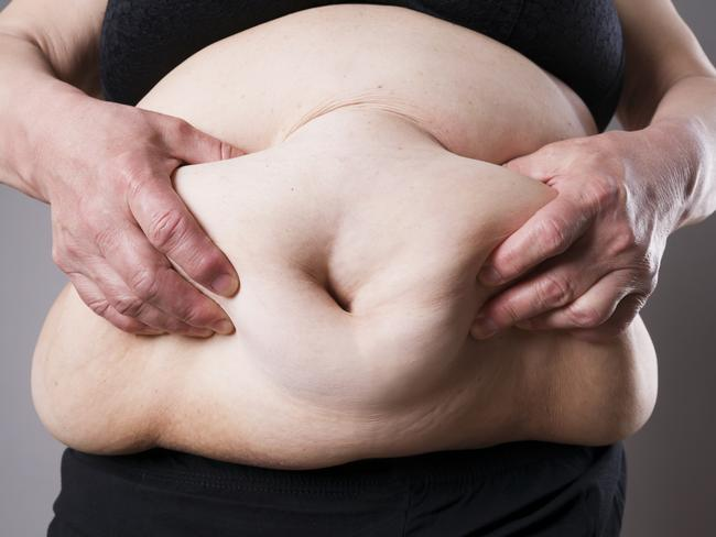 Being overweight might not be completely your fault, research suggests. Picture: istock