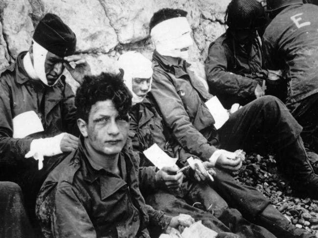 Cost of war: American assault troops of the 16th Infantry Regiment, injured while storming Omaha Beach on June 6, 1944. AP Photo