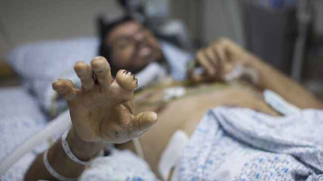 A wounded Syrian man is treated at the Israeli Ziv hospital in the town of Safed. About 140 Syrians who have been wounded in fighting in neighboring Syria have been treated in Israeli hospitals since the beginning of the Syrian Civil war. Picture: Getty