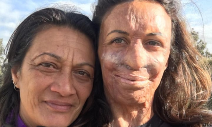 Turia Pitt on the three letter word her mum used that 'changed her life'