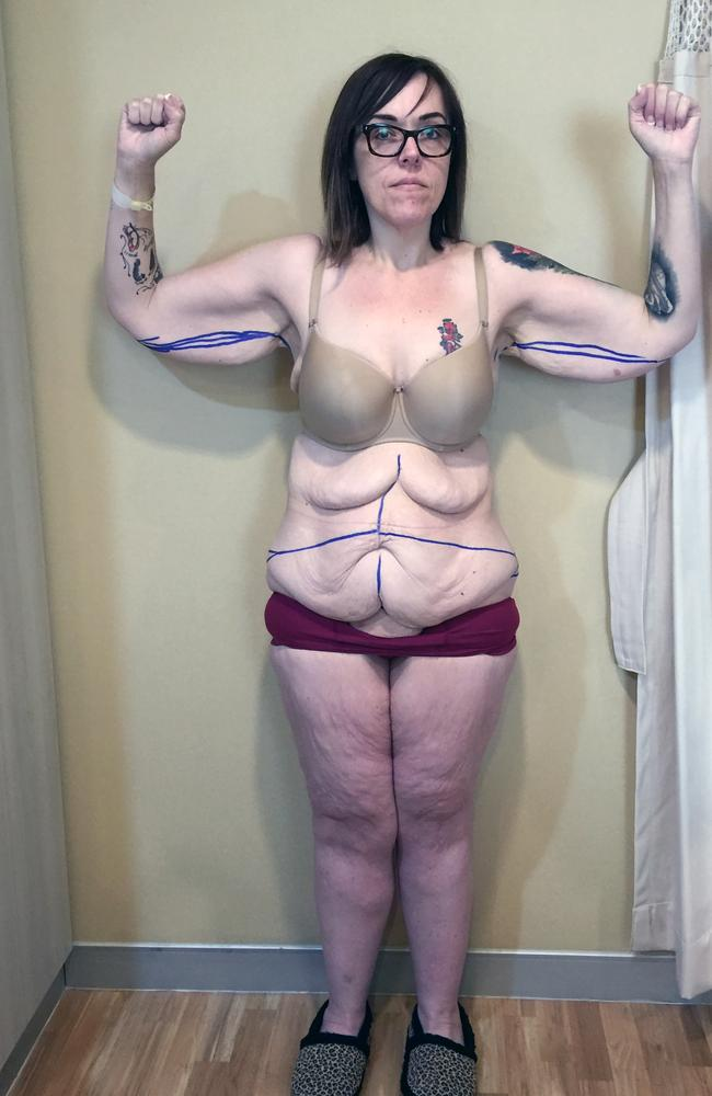 Anita had a lot of excess skin following her weight loss. Image: Caters