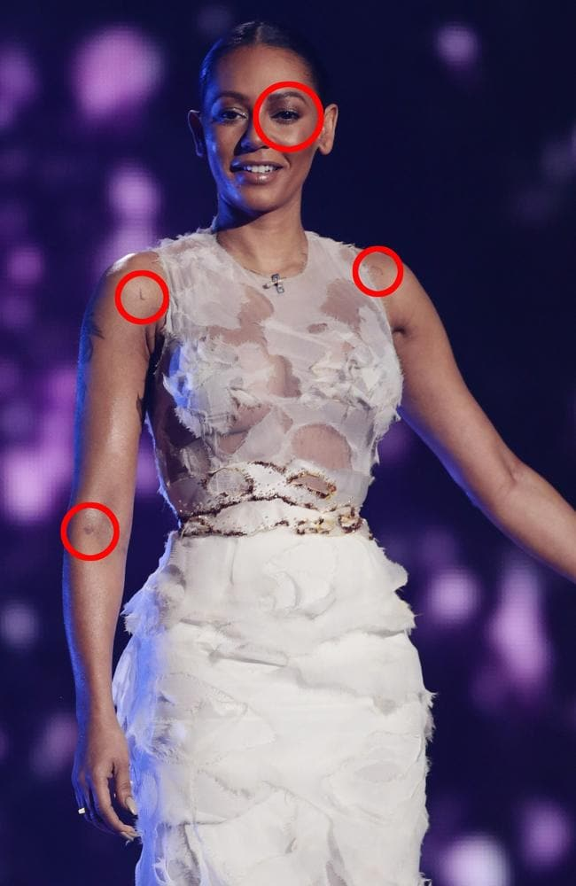 Mel B returned to the X Factor covered in bruises, and not wearing her wedding ring. Picture: Corbis