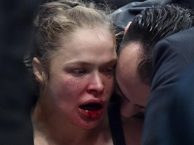 Ronda Rousey was bloodied and bruised after being knocked out by Holly Holm. Picture: AFP/Paul Crock.
