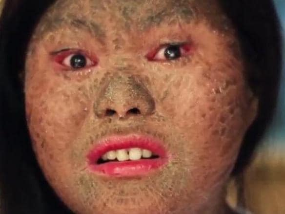 ONE TIME WEB USE ONLY - FEE APPLIES FOR REUSE - Floraine Nalugon suffers from lamellar ichthyosis, which means her skin doesn't shed dead skin cells properly. Picture: News Lions/SWNS/Mega