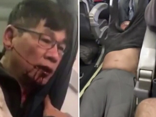 Dr David Dao was controversially dragged off a flight in April. Picture: AP