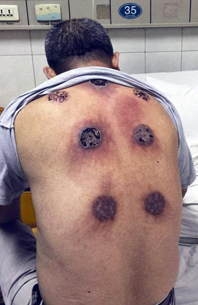A man was left with seven holes after undergoing cupping therapy to make him feel better. Picture: CEN/Australscope