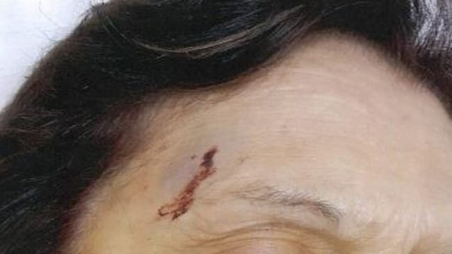 An elderly woman was punched in the head repeatedly during a brazen attack. Picture: Victoria Police