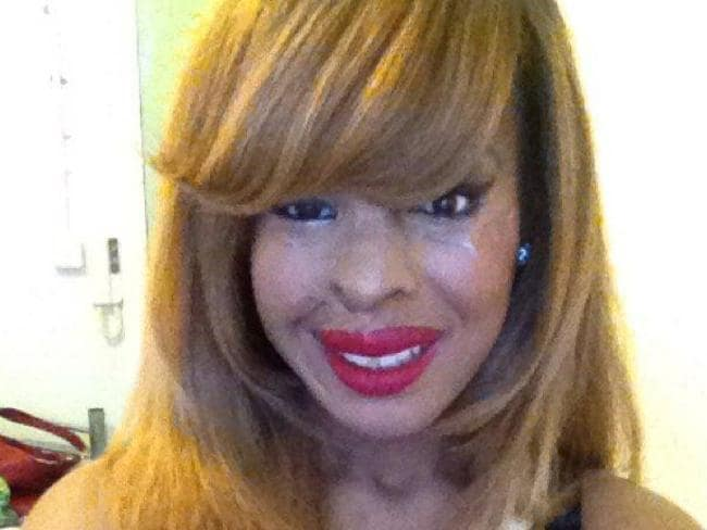 Naomi Oni was left permanently scarred in the attack.