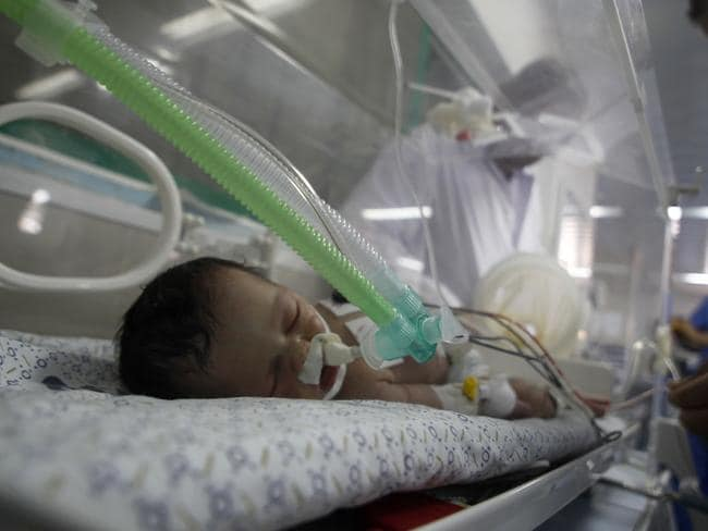 Tragic ... Palestinian baby girl, Shayma Sheikh al-Eid, who was rescued by Gaza doctors from her dead mother's womb has died.
