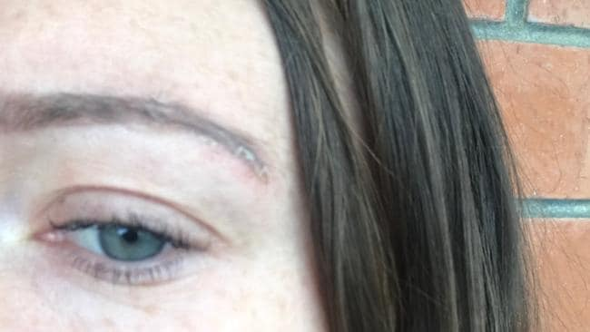 Katharine's brows today — with a little scarring remaining.