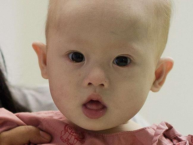 Baby Gammy was born with Down syndrome, at the Samitivej hospital. AFP PHOTO / Nicolas ASFOURI