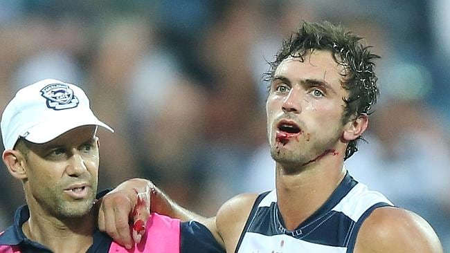 Geelong's George Burbury is taken from the field with a suspected broken jaw following a collision with N...