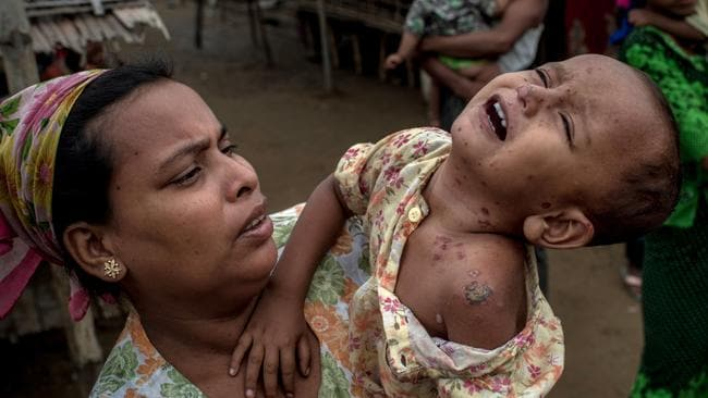 """A young Rohingya girl suffering from infected heat rash on her face and body, in an IDP camp in Burma. Tony Abbott said """"nope, nope, nope"""" to accepting the Rohingyan refugees who fled on boats. Picture: Jonas Gratzer / Getty Images"""