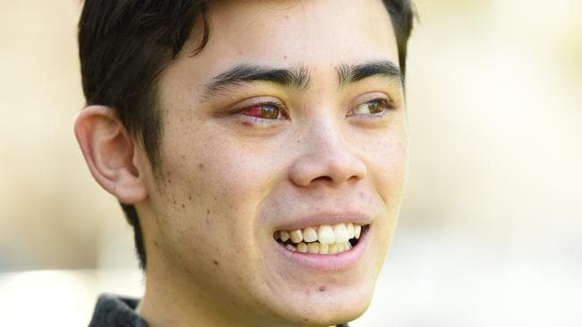 The university student underwent emergency dental surgery to repair his broken teeth. Picture: Lawrence Pinder