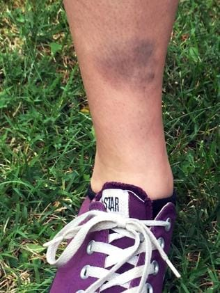 Lindsay Plunkett ended up with a hefty bruise after stumbling into a concrete block while playing. Picture: AP