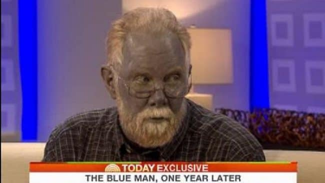 Real Life Blue Man Dies Aged 62