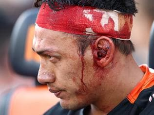 NRL Rd 2 - Wests Tigers v Panthers
