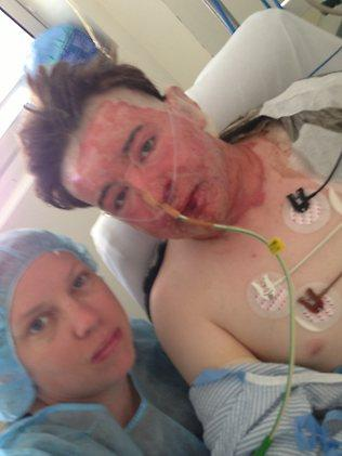 Burns victim Luke Coburn, who is now out of intensive care, seen with his sister Donna Ray