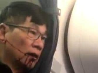Doctor dragged from flight settles
