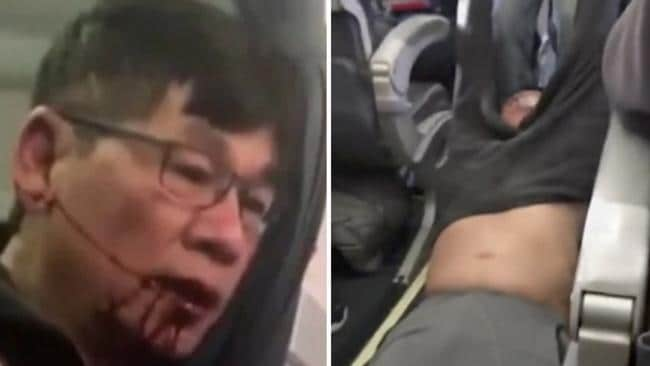 United Airlines passenger Dr David Dao is removed from a flight. Picture: AP