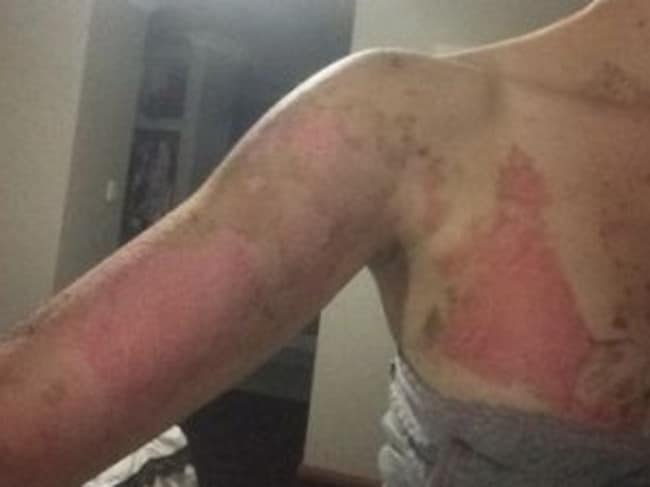 Ms Jones received horrific burns to several parts of her body. Picture: Supplied.