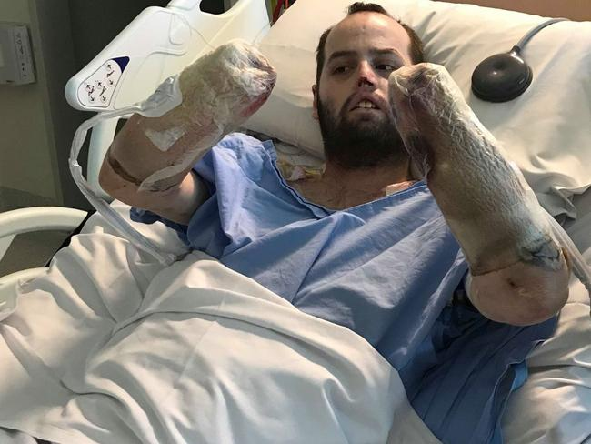Jake Clift, in hospital following his amputations. Picture: Gofundme