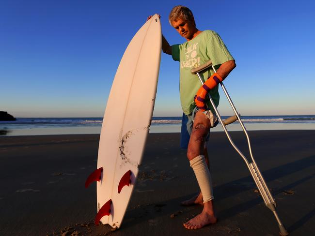"'All those teeth are like the gates of hell,"" said Evans Head shark attack victim Craig Ison. Picture: Nathan Edwards"