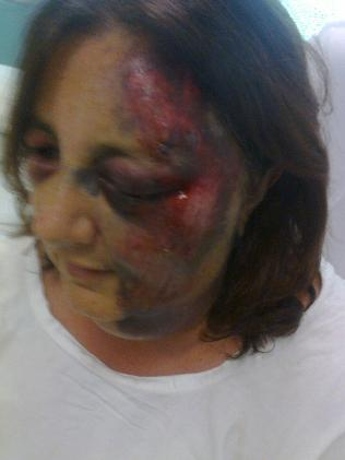 Janice Taylor is lucky to be alive after she was bitten by a deadly snake a week ago. Photo: Nine News Perth