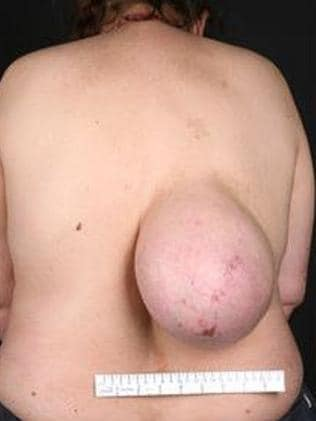 The lump has been growing for 10 years. Picture: bmj.com
