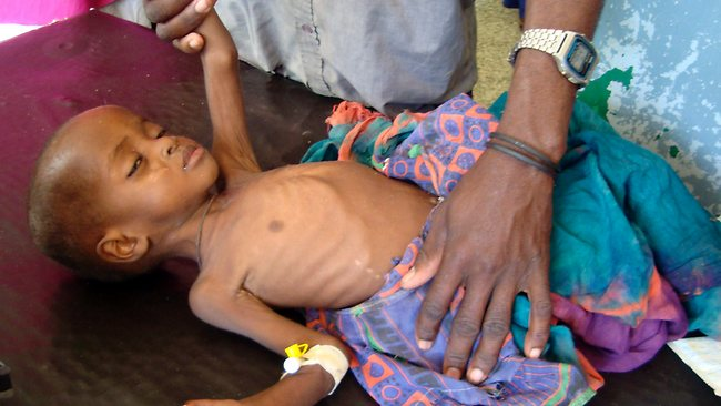 Nune Abdil, 2, a malnourished child from southern Somalia get treatment in Banadir hospital in Mogadishu. Thousands of people have arrived in Mogadishu over the past two weeks seeking assistance and the number is increasing by the day, due to lack of water and food. Picture: AP