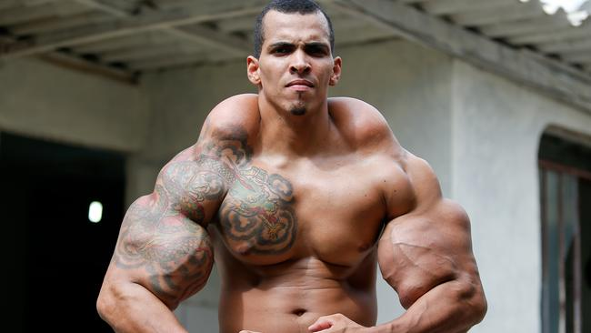 WOW ... Bodybuilder Romario Dos Santos Alves modelled himself on the Incredible Hulk and risked his life injecting oil into his arms. Picture: Getty
