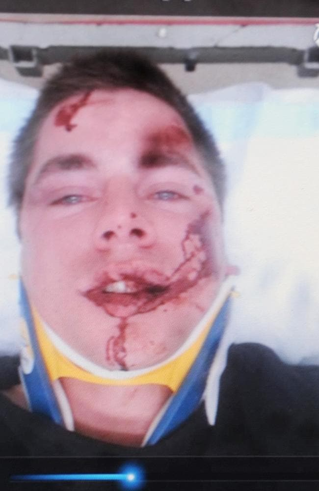 Image of Lance Coote in hospital.