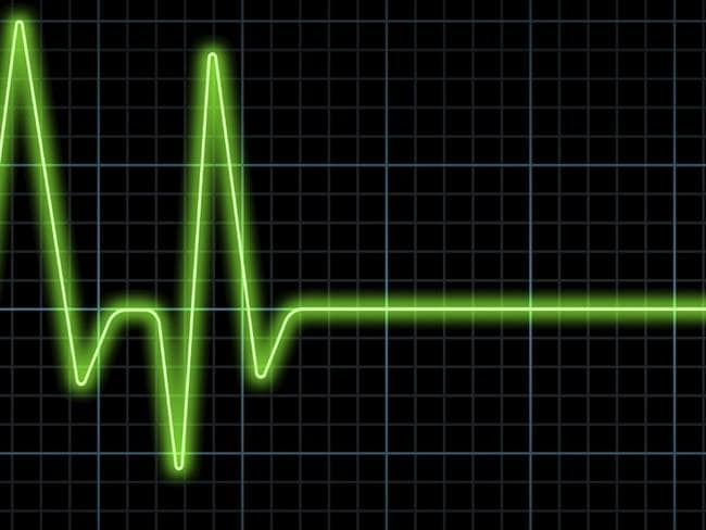 Pulse Trace, Death, Heartbeat, Heart Attack, Life, Healthcare And Medicine, Survival, Medicine, Frequency, Urgency ...more