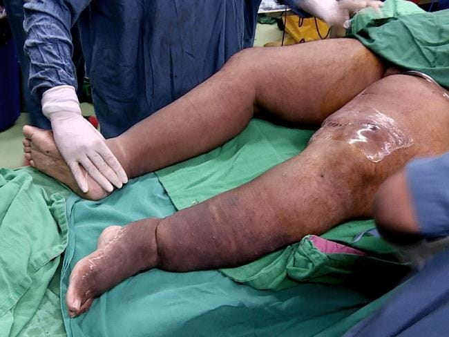 The 46-year-old man from Thrissur in Kerala, southern India underwent some surgeries over the years, but to no avail. Picture: Caters