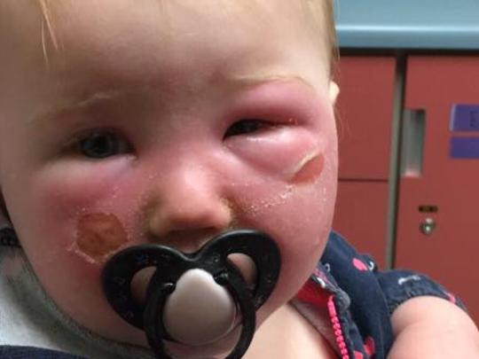 Baby suffers burns 'from sunscreen'