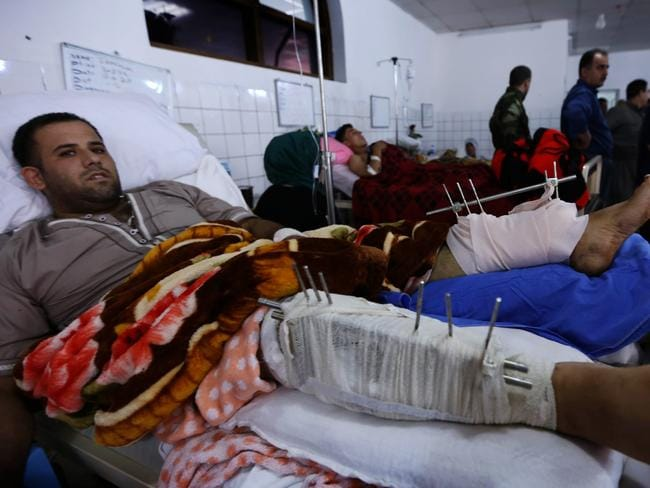 Bloodshed ... a Kurdish Peshmerga fighter wounded in clashes with jihadists from the Islamic State of Iraq and the Levant (ISIL) in Kirkuk in a hospital in Arbil. Picture: Safin Harmed
