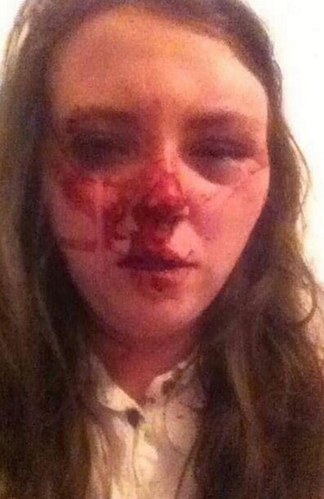Paige Hegarty, 21, suffered fractures to her cheekbone and eye socket. Picture: MEN Media/Mirrorpix/australscope