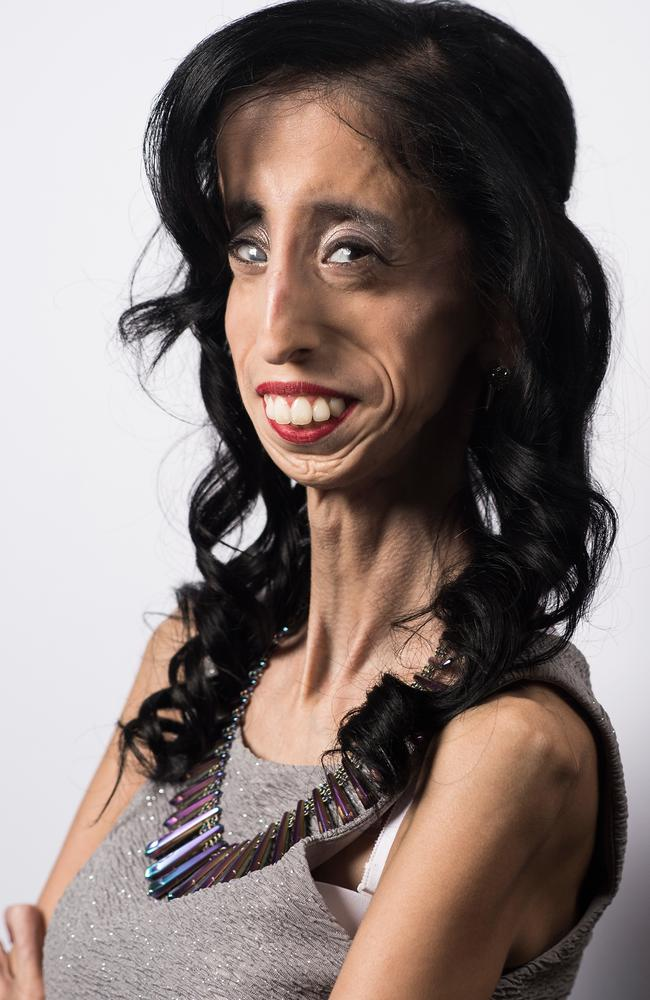 The most ugliest woman in the world