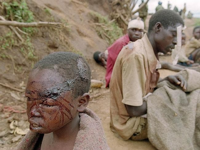 This picture taken on April 24, 1995 shows wounded refugees in the south western Kibeho c