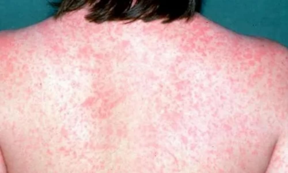 Measles outbreak: How to spot the signs and symptoms early