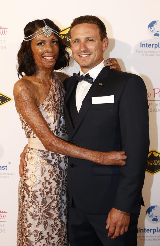 Turia Pitt and Michael Hoskin at the Interplast Gatsby Gala at Doltone House in Pyrmont.
