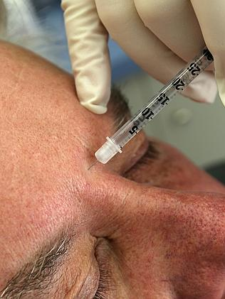 A man has a Botox treatment at The Aesthetic Laser Centre in Salamanca.