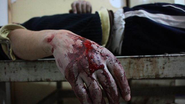 A wounded man lies inside a makeshift hospital in the rebel-held town of Douma, following air strikes by regime forces. Picture: Hamza Al-Ajweh/AFP