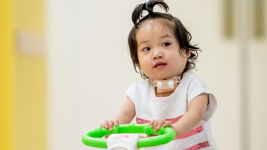 Eva, 2, has had a tracheostomy. Picture: JAKE NOWAKOWSI