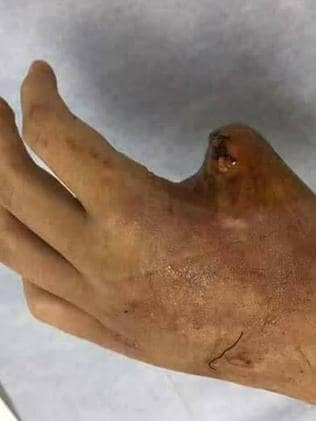 The victim's thumb was amputated following the snake bite.