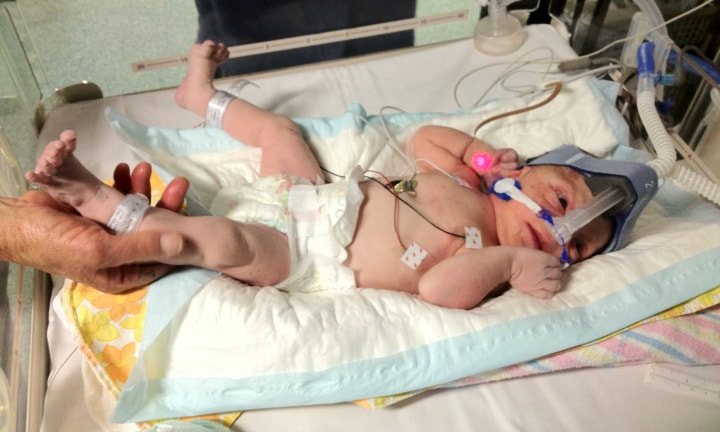 Little Isobel in the NICU. Image: Supplied