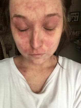 This picture of British teacher Megan Underwood with severe eczema was published in the UK on the weekend. Picture: Caters News Agency