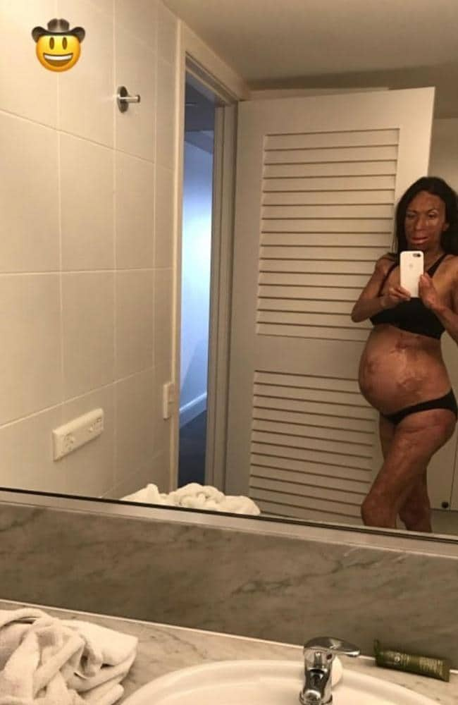 Turia Pitt has shared an adorable photo of her growing baby bump on Instagram.