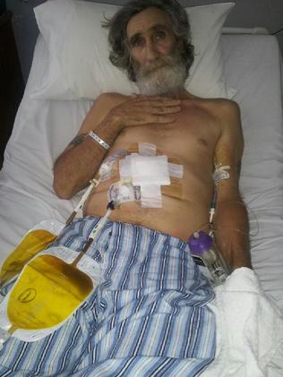 Russell Clark, 62, is suffering from end stage liver disease.