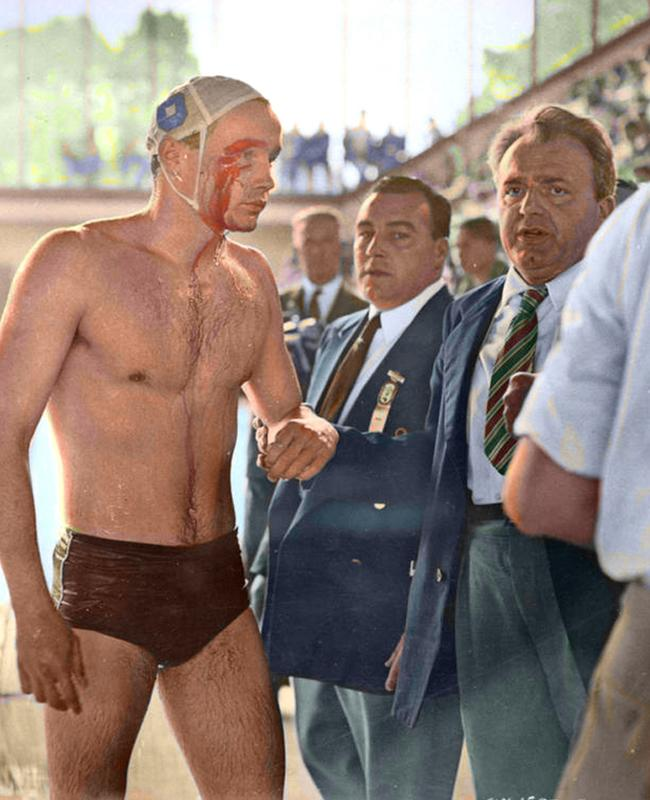 A bloodied Ervin Zador of Hungary emerges form the pool in the water polo match against the Russian team at the 1956 Melbourne Olympic Games.